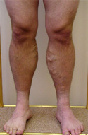 Deliveryman's aching varicose veins before correction